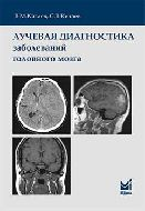 Лучевая диагностика заболеваний головного мозга